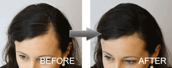 Hair Loss Fibres Femal before and after