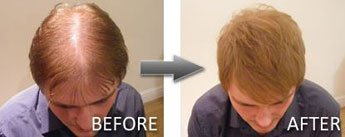 Hair Thickener Before and After 3