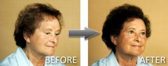 Hair Thickener Before and After 4