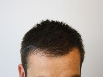 Hair loss fibres step 5