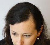 Mane Hair Loss Fibres before female