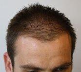 Mane Hair Loss Fibres before