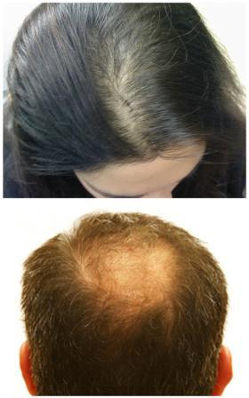 Thinning Hair and Hair Loss can cause confidence issues