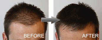 Mane Hair Thickening Fibres