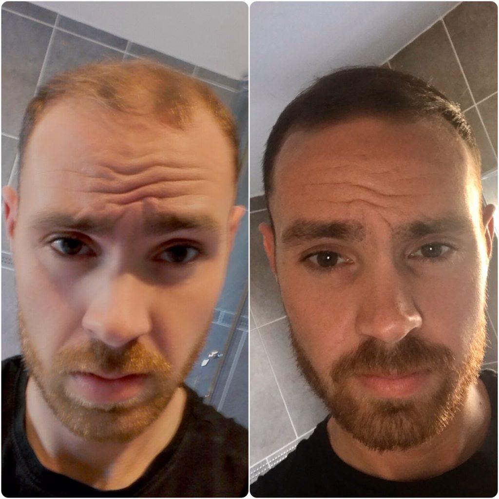Dan using mane hair thickener