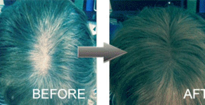 Hair Thickener before and after Grey